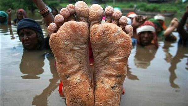 The feet of a protestor are displayed during the Jal Satyagraha at Ghogal in Khandwa MP.